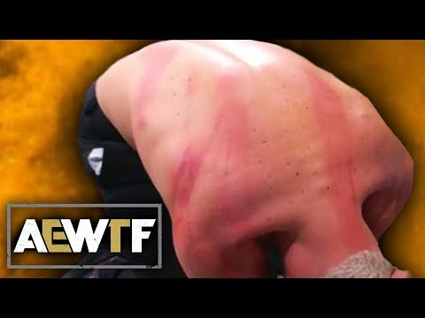 AEW: Dynamite WTF Moments (5 Feb) | Cody Takes 10 Lashes From MJF